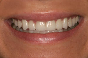 After Kor whitening from Eccella Smiles the cosmetic dentists jacksonville beach residents trust
