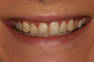 Before Kor whitneing from Eccella smiles, the cosmetic dentist Jacksonville beach trusts
