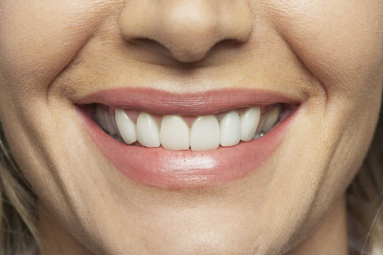 Jacksonville implant dentist has important advice for those with dental implants.