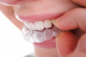 Find out how Invisalign in Jacksonville from Eccella Smiles can give you the perfect teeth you've been dreaming of with invisible treatment!