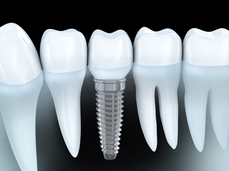 Your Jacksonville implant dentist will replace your missing teeth.