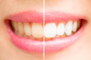 Before & After Teeth Whitening Treatment in Jacksonville FL