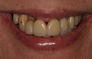 Closeup of smile with severe damge and decay