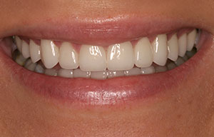 Discolored front teeth