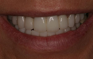 Closeup of bright smile with veneers