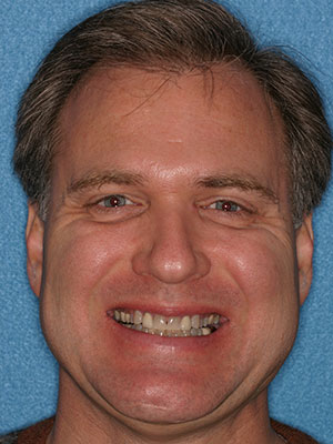 Man with decayed and discolored teeth
