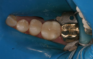 Molars with natural looking CEREC crowns