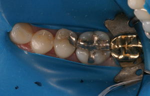Molars with metal fillings