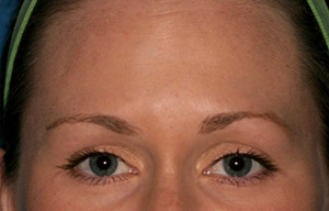 Woman's smooth forehead after Botox