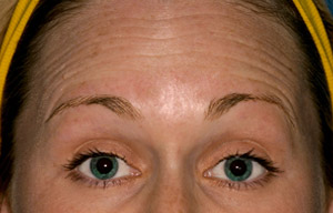 Woman's wrinkled forehead