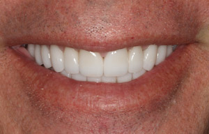 Front teeth with small gap between them
