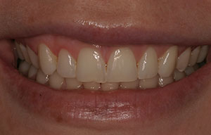 Closeup of smile after laser gingivectomy