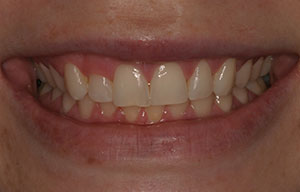 Closeup of smile with stubby teeth
