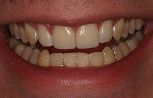 Closeup of smile with flawlessly repaired teeth