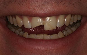 Closeup of smile with broken tooth