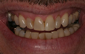 Closeup of discolored damaged smile