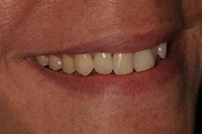 Woman with a restored dental implant