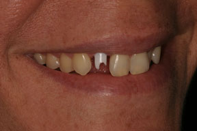 Woman with a dental implant in place