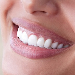 Closeup of teeth with healthy gum line