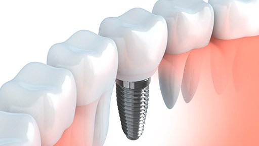 Dental Implants in Jacksonville Beach, FL and Beyond