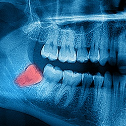 WISDOM TOOTH EXTRACTIONS IN JACKSONVILLE FL