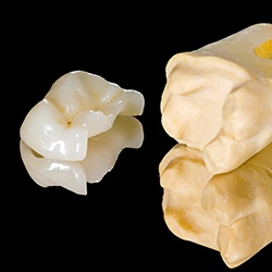 Model tooth and dnetal crown