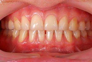 Gum Lift Treatment in Jacksonville FL