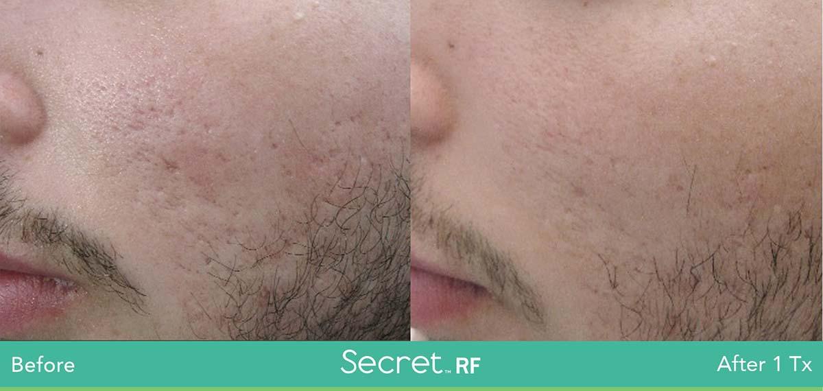 Secret Rf Man Face Treatment