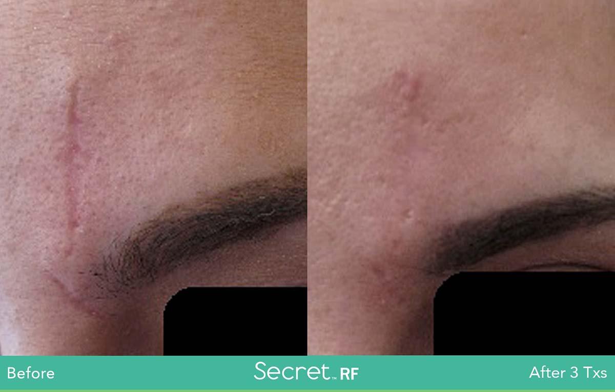Secret Rf Skin Scar Treatment