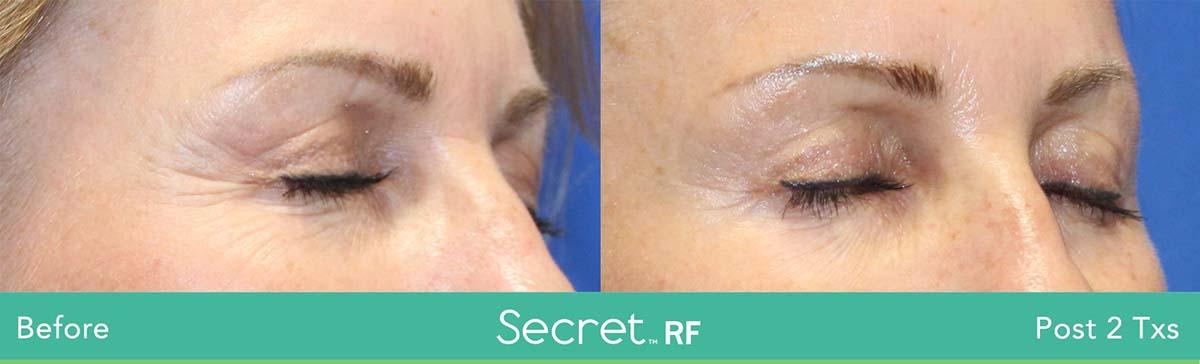Secret Rf Woman Eyes Treatment