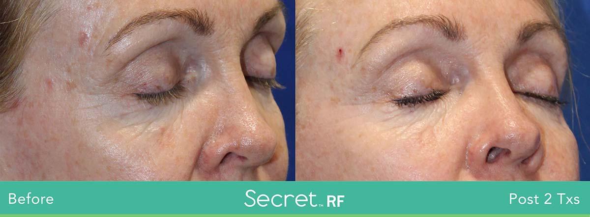 Secret Rf Woman Eyes Treatment 2
