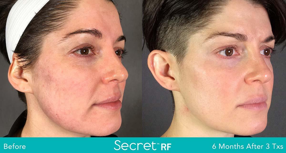 Secret Rf Woman Face Treatment