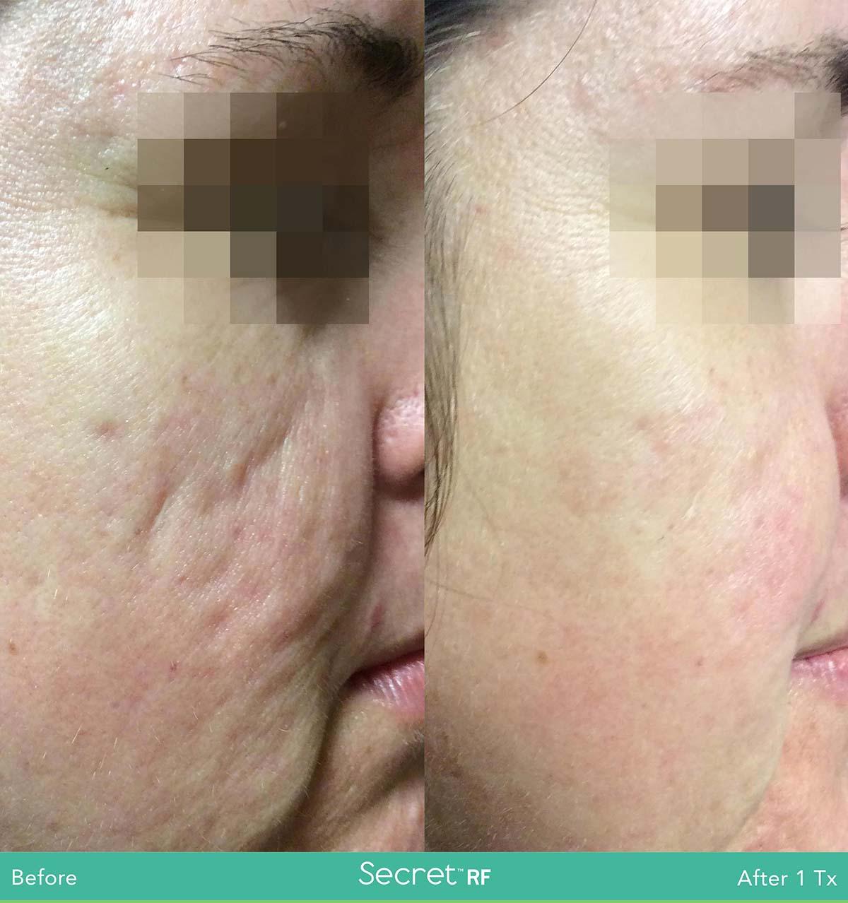 Secret Rf Woman Face Treatment 10