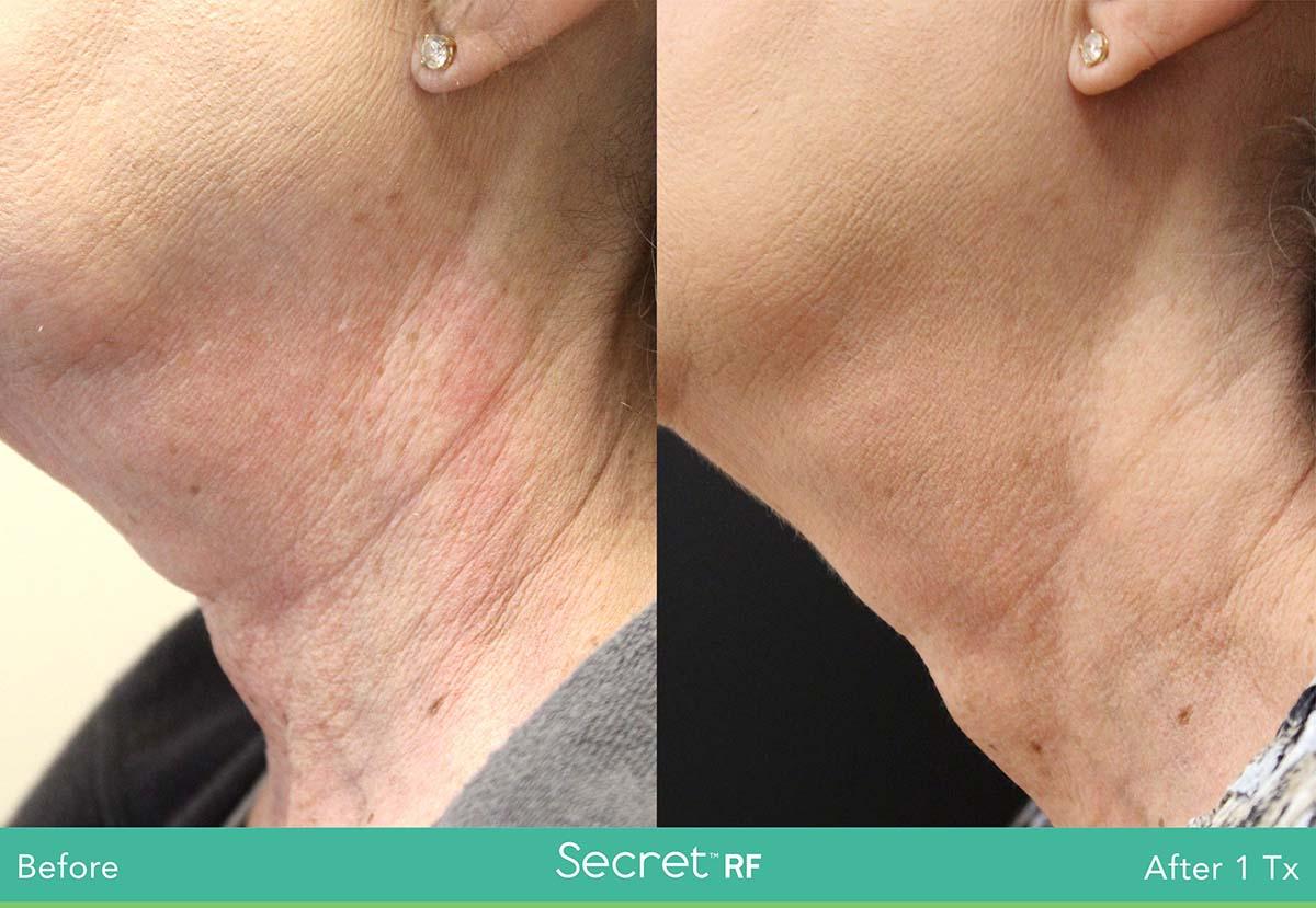 Secret Rf Woman Face Treatment 11