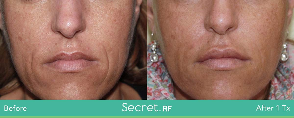 Secret Rf Woman Face Treatment 12