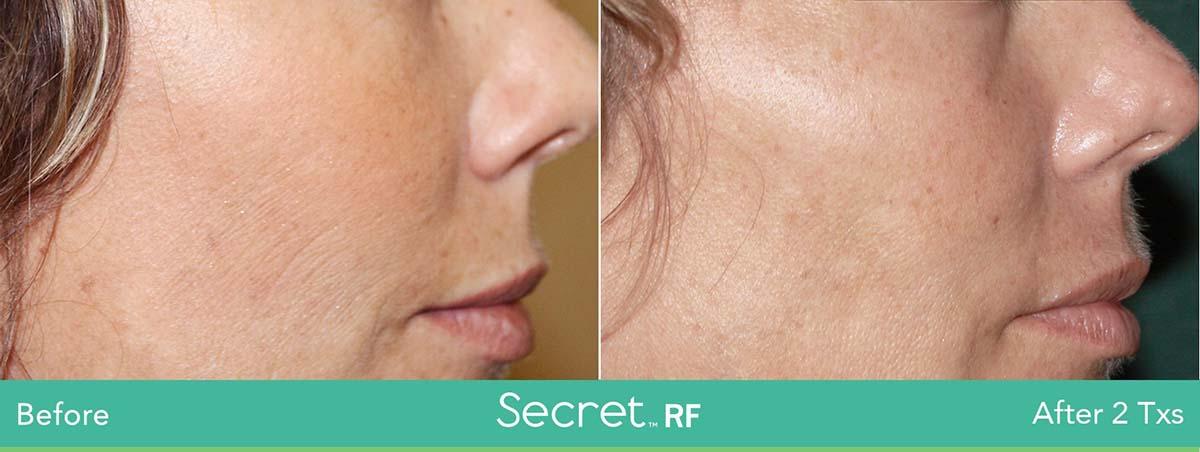 Secret Rf Woman Face Treatment 13