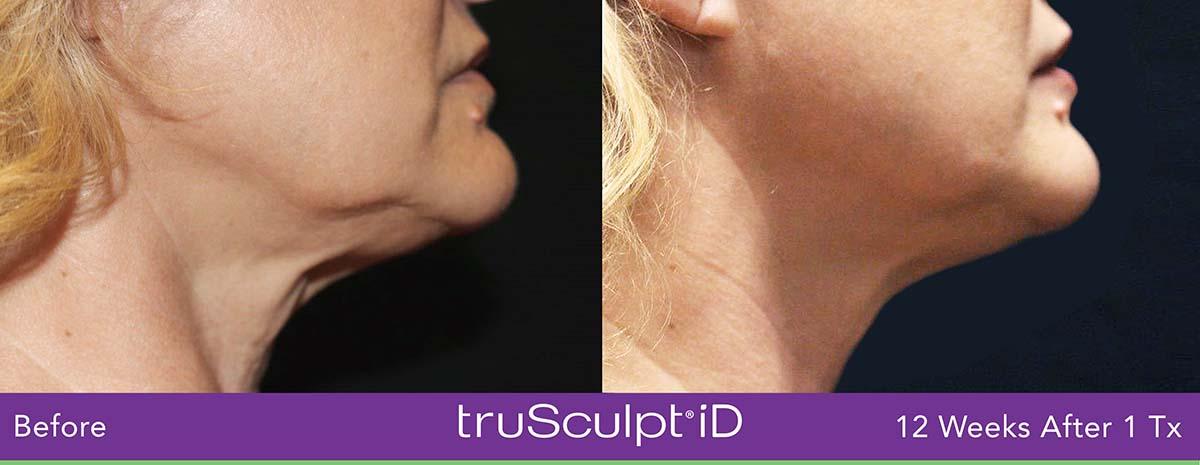 Secret Rf Woman Face Treatment 14