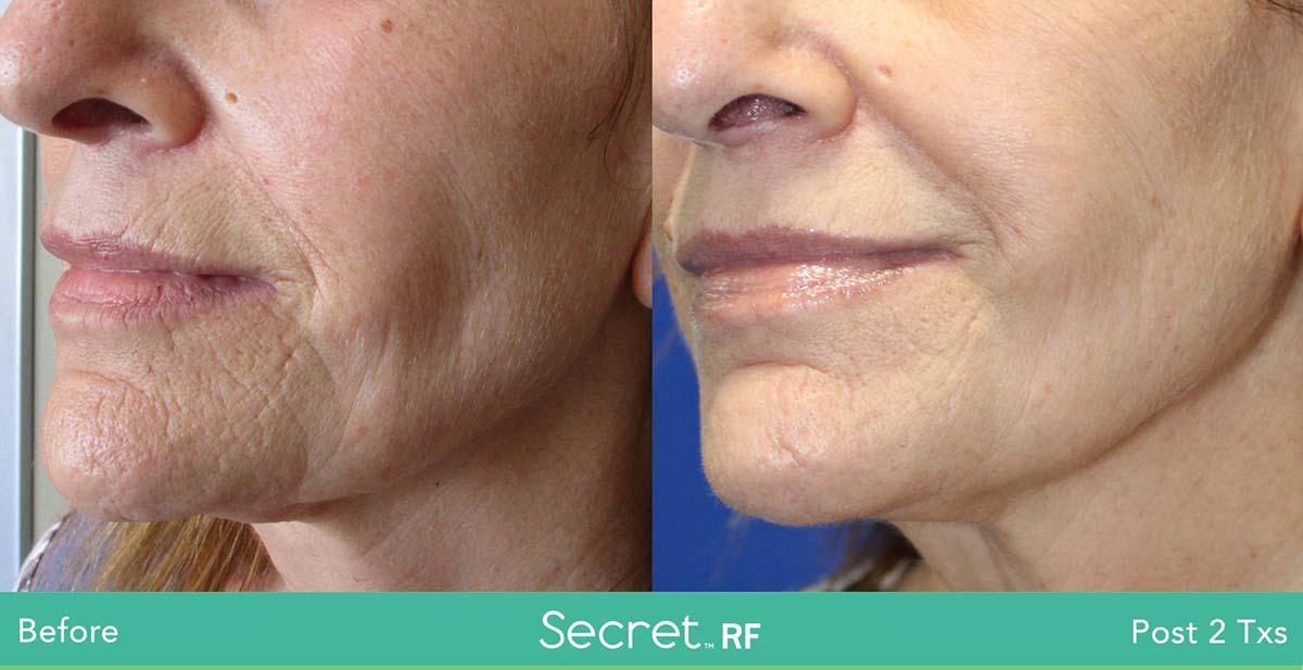 Secret Rf Woman Face Treatment 2