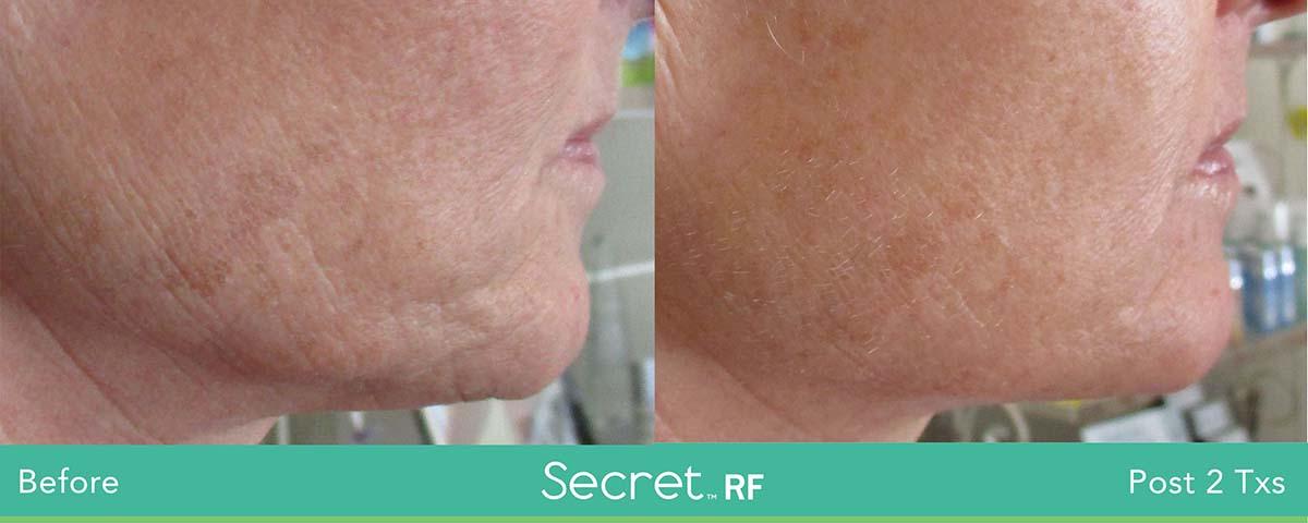 Secret Rf Woman Face Treatment 3