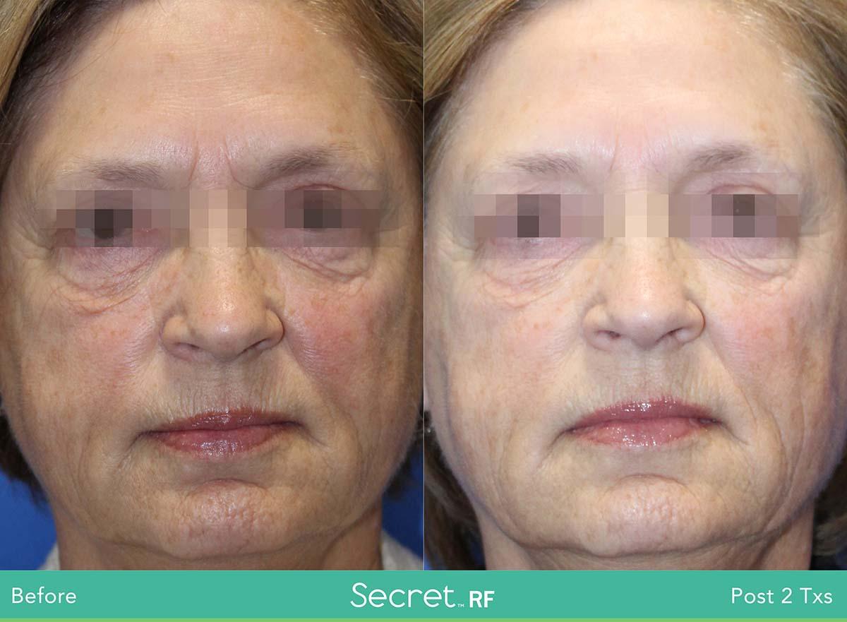 Secret Rf Woman Face Treatment 4