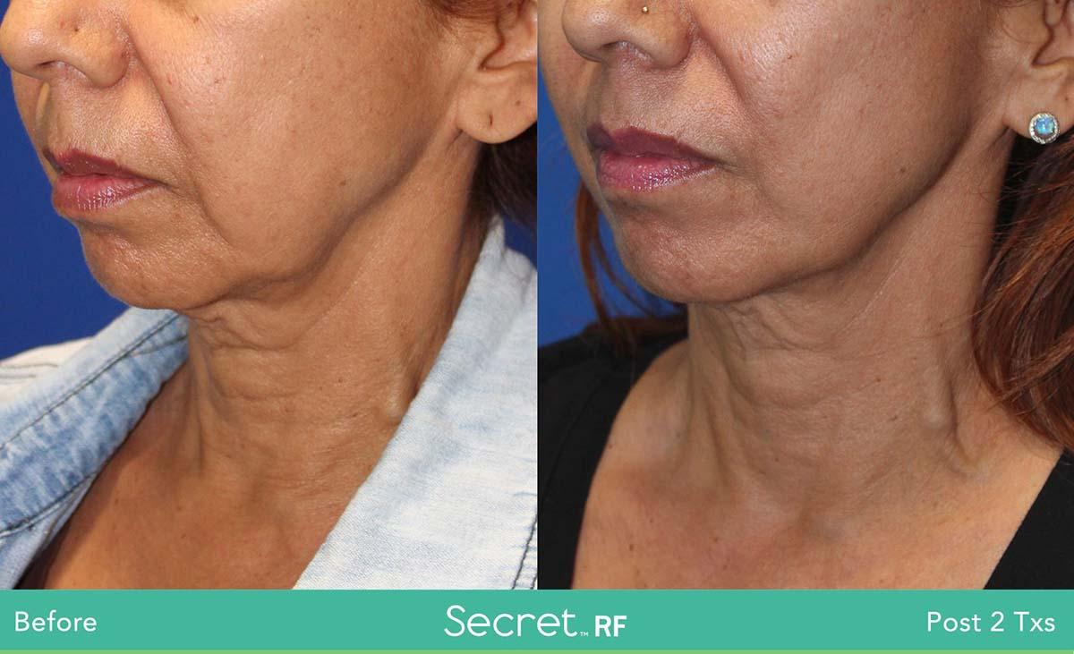 Secret Rf Woman Face Treatment 5