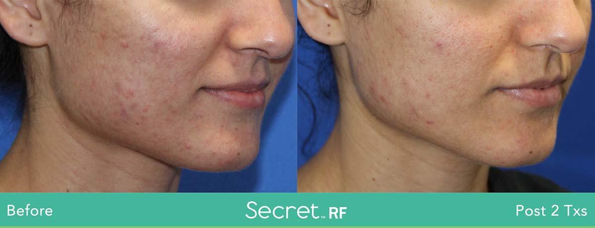 Secret Rf Woman Face Treatment 6