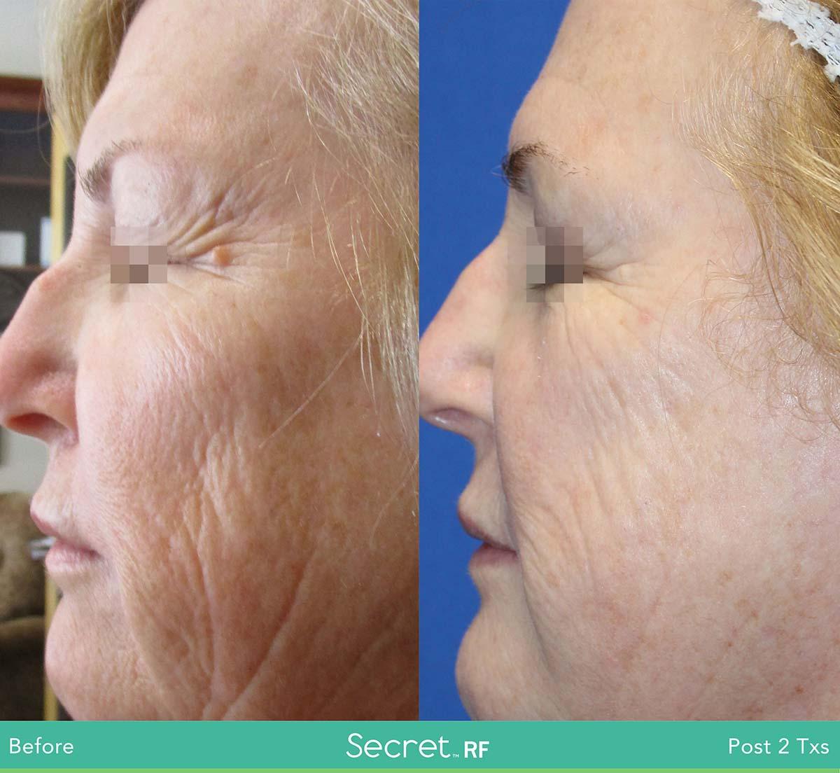 Secret Rf Woman Face Treatment 7
