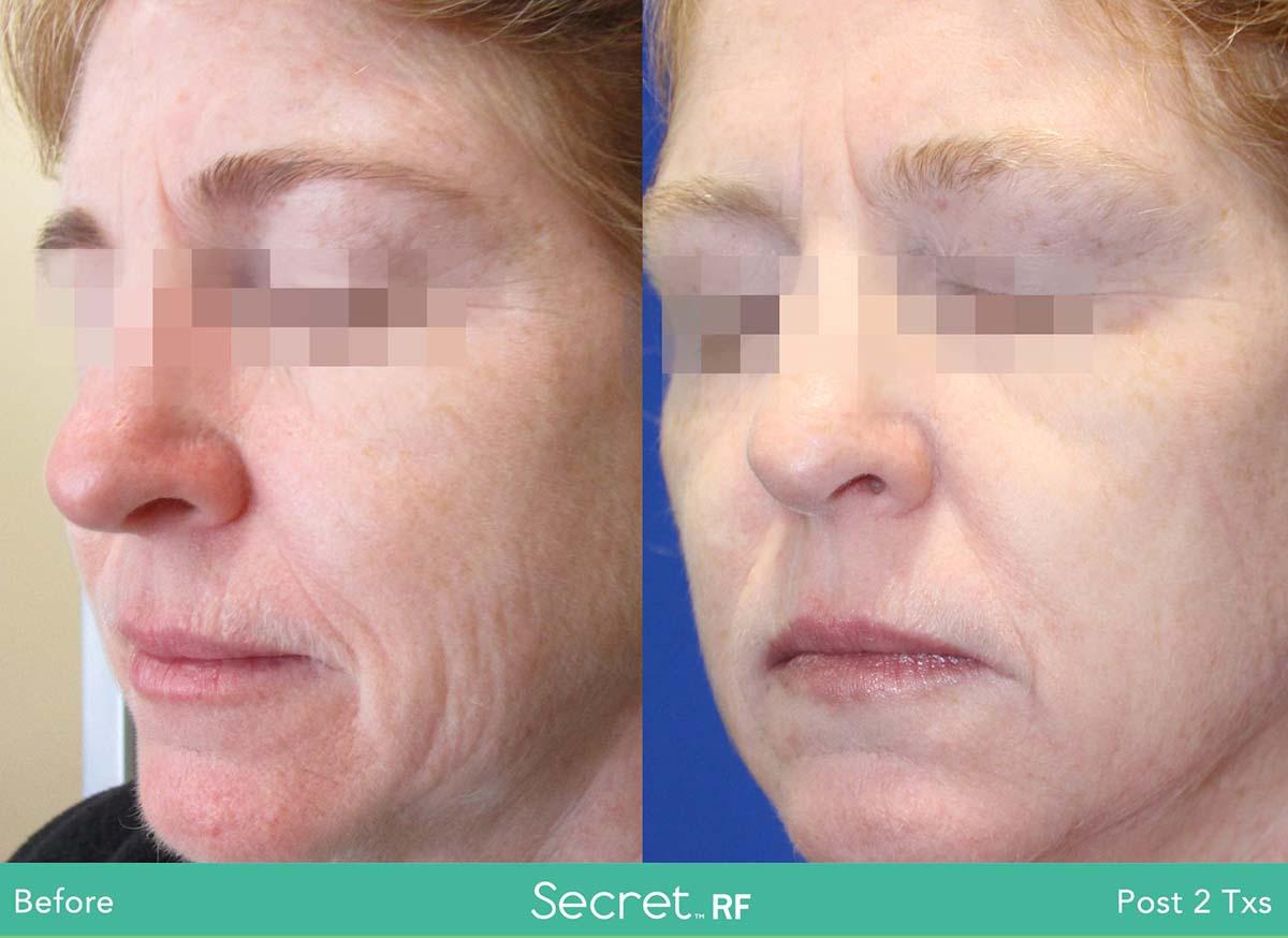 Secret Rf Woman Face Treatment 8