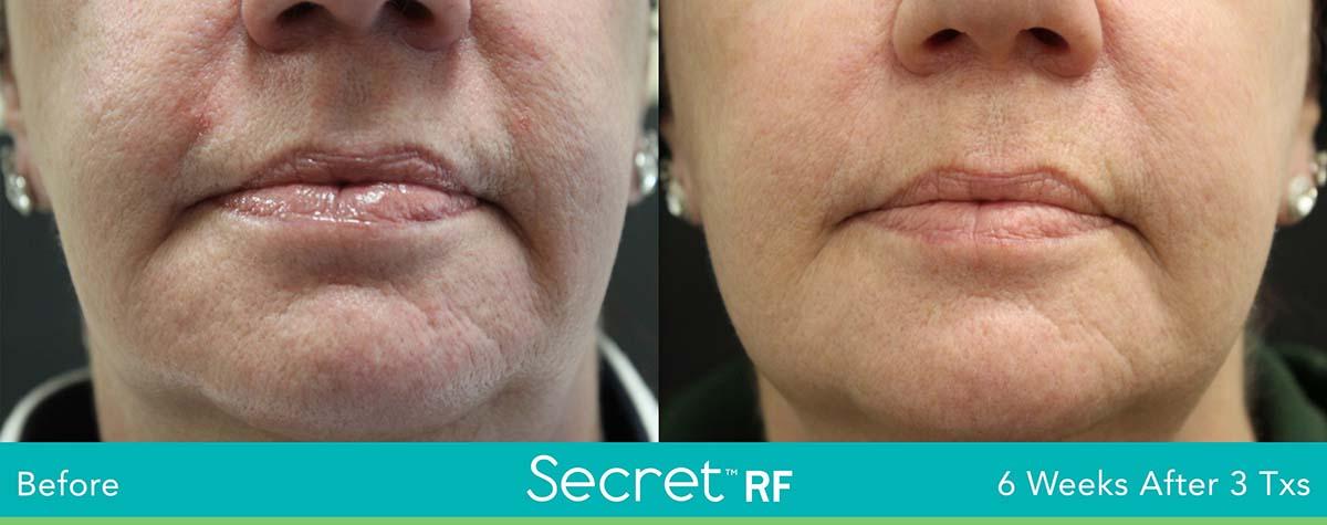 Secret Rf Woman Face Treatment 9