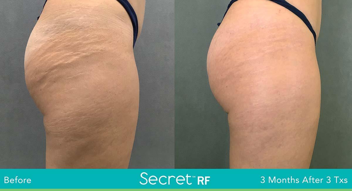 Secret Rf Woman Glutes Treatment
