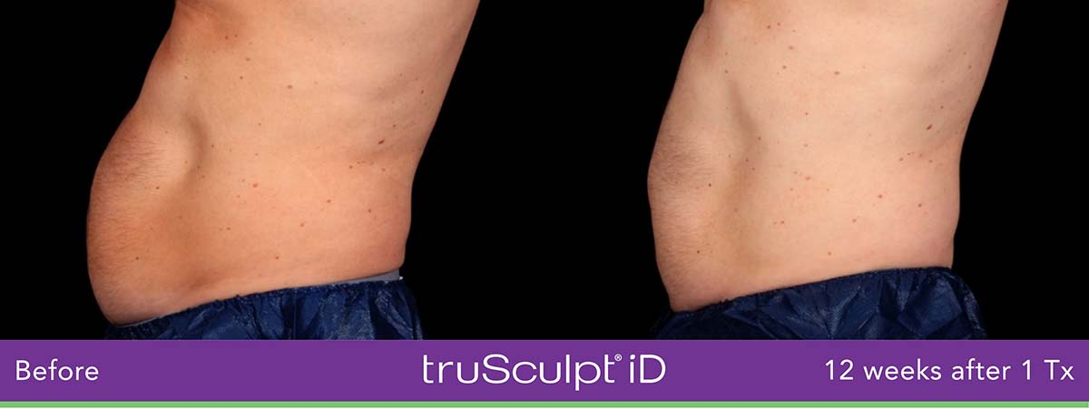 Trusculpt Id Men Belly Before And After 2