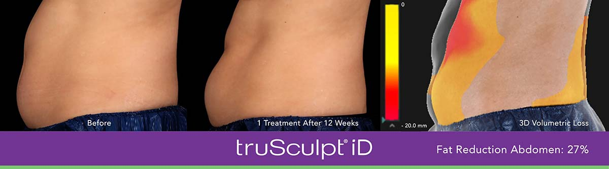 Trusculpt Id Men Belly Before And After 3