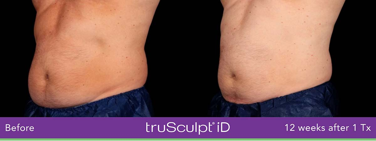Trusculpt Id Men Belly Before And After