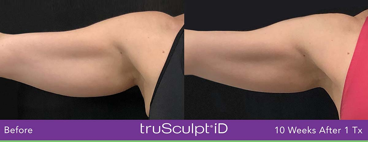 Trusculpt Id Woman Arm Before And After